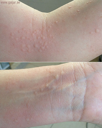 klor allergi symptom
